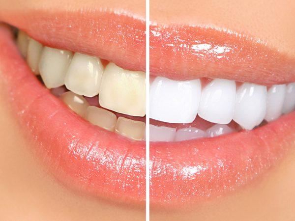 Teeth Whitening_1