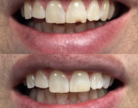 BONDING OF A CHIPPED TOOTH
