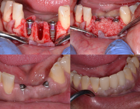 BONE GRAFT AND IMPLANT PLACEMENT