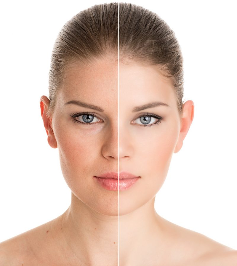 Botox and Fillers_Before and After