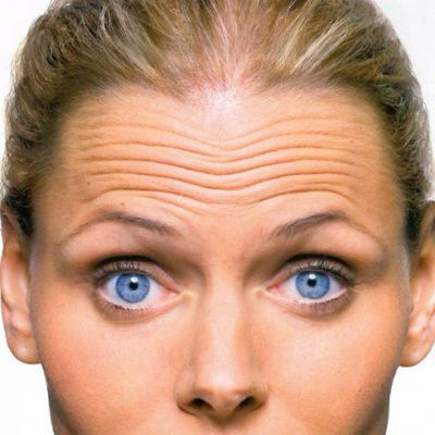 Botox_comun-Areas_Upper-Forehead-Lines